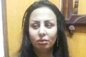 """مخرج """"سيب إيدى"""": رضا الفولى أصيبت بمرض نفسى بعد تورطها بقضية دعارة"""