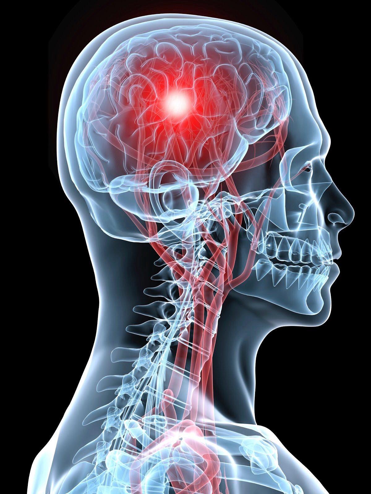 السكته الدماغيه وماتعرفه عن الجلطة الدماغيه ونزيف المخ
