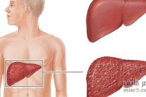تنظيف الكبد وكيفية المحافظة عليه