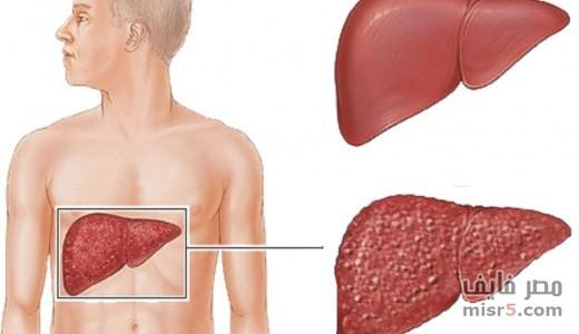 المحافظة علي الكبد