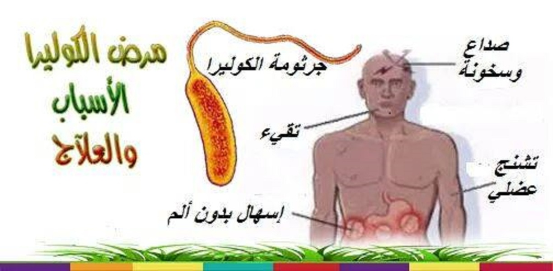 مرض الكواليرا