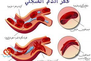 تعرف على مرض فقر الدم المنجلي