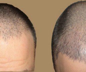 هل تنوي إجراء زراعة الشعر في تركيا ؟