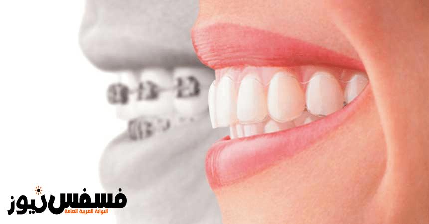 Photo of تبييض الأسنان .. أحدث فروع طب الأسنان التجميلي