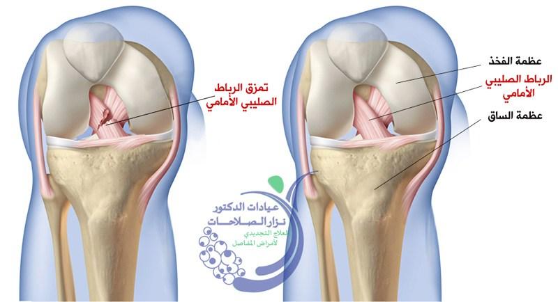 Photo of علاج قطع الرباط الصليبي الجراحي والغير جراحي