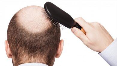 Photo of خمسة أمور يجب عليك معرفتها قبل أن تقرر زراعة الشعر