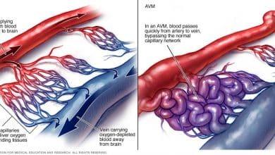 Photo of مرض AVM تشوه الشرايين الوعائية